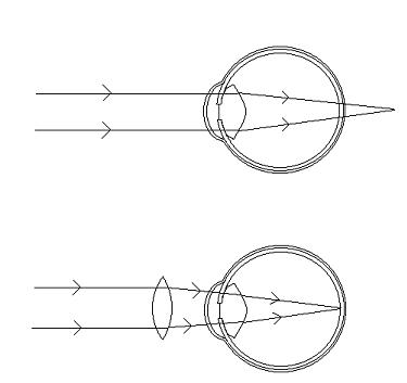 dalekowzroczność-schemat