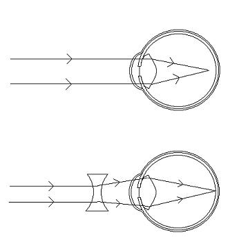 krótkowzroczność-schemat